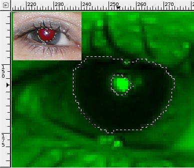 Bild4: Selektion der Pupille