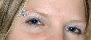 Korrigierte Augenpartie